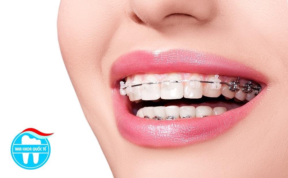 Các loại niềng răng và chi phí