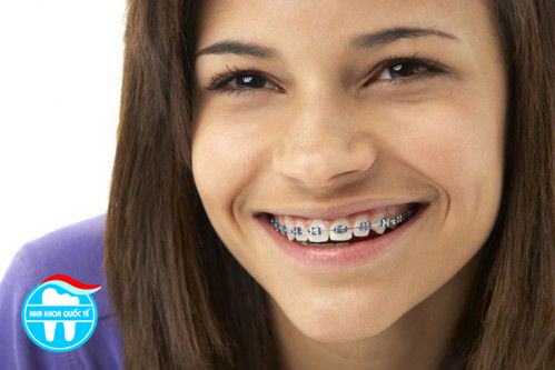 Những đều cần biết về chỉnh hình răng miệng