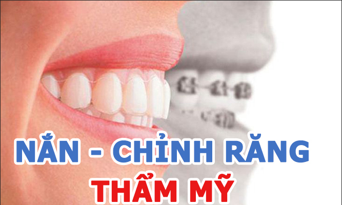 Banner nắn - chỉnh răng thẩm mỹ