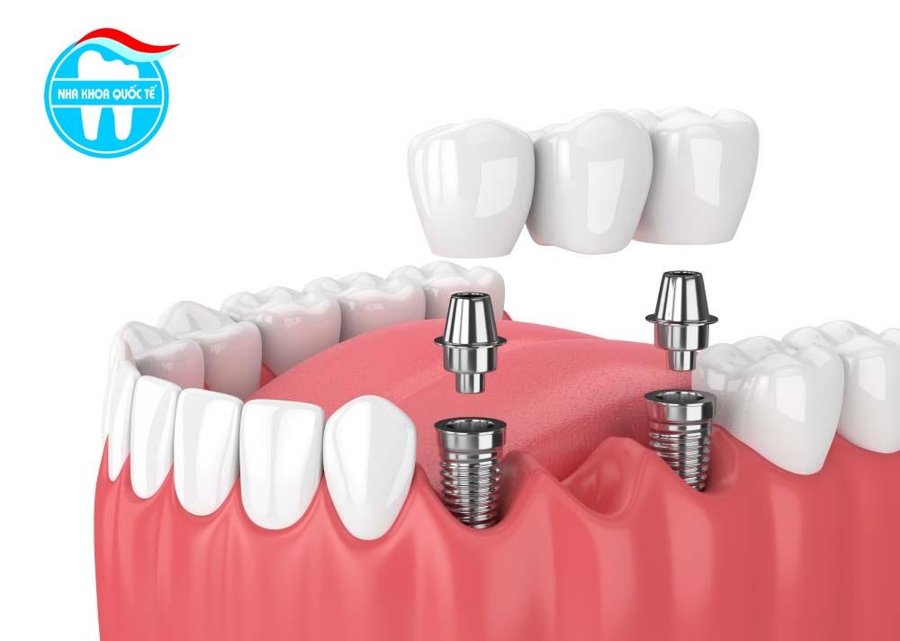 Trồng răng Implant bạn cần biết những gì?