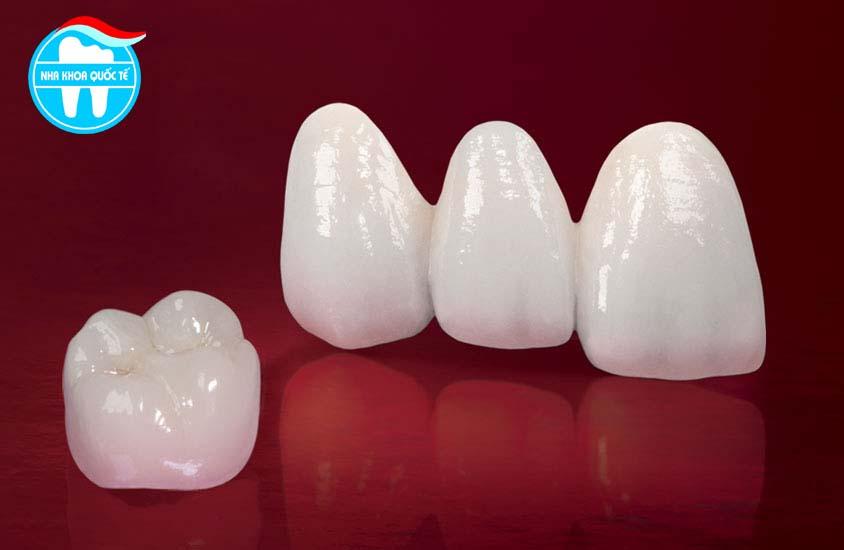 Làm răng sứ hết bao nhiêu tiền?