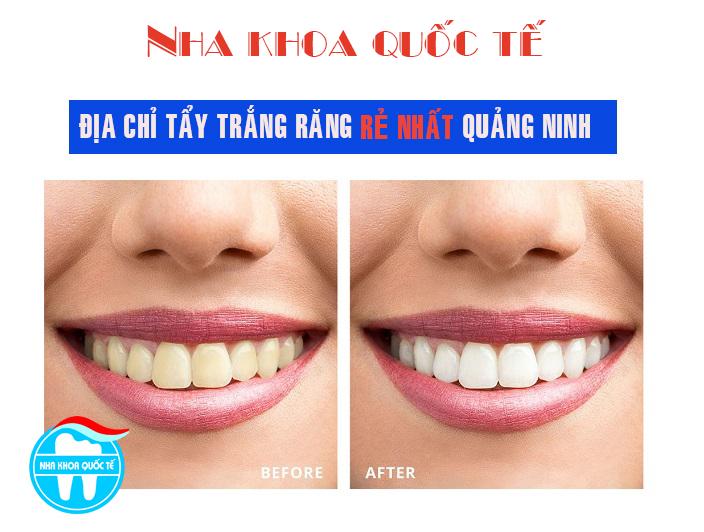 Chi phí tẩy trắng răng là bao nhiêu?