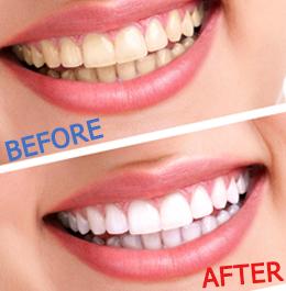 Thời gian để tẩy trắng răng mất bao lâu?