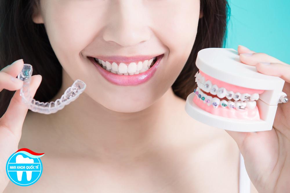 Giá răng dịch vụ nắn - chỉnh răng thẩm mỹ