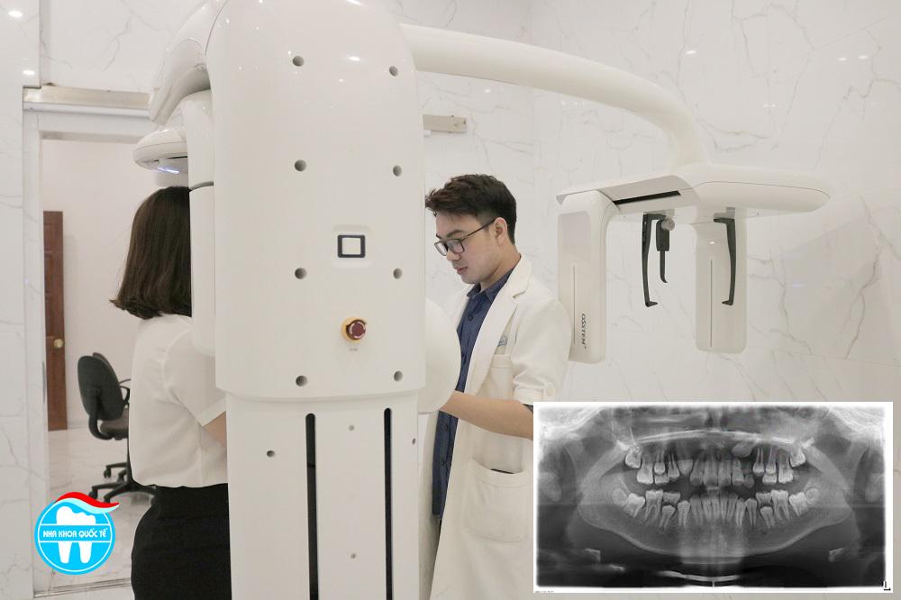 chi phí niềng răng
