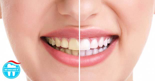 tại sao cần tẩy răng