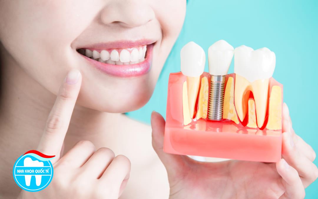 chi phí trồng răng implant