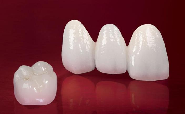 Giá dịch vụ làm răng giả