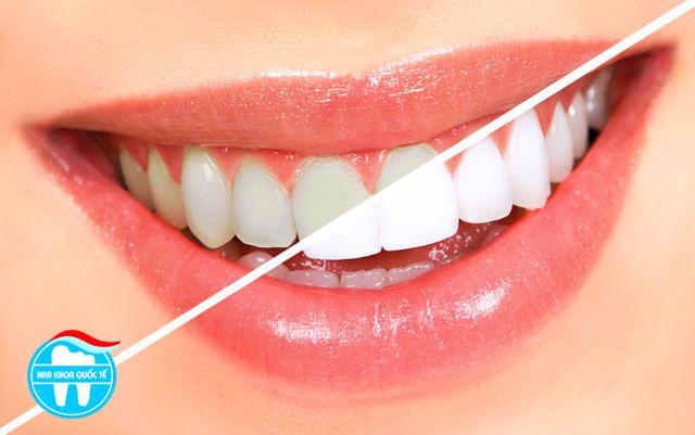 Giá dịch vụ tẩy trắng răng